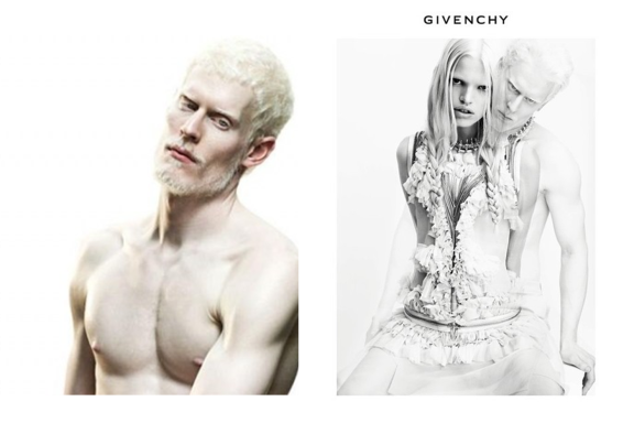 Albino model Stephen Thompson appears with Daphne Groeneveld  Read more: http://www.dailymail.co.uk/femail/article-1338506/Givenchy-casts-albino-model-Stephen-Thompson-latest-advertising-campaign.html#ixzz1uFlN1xgn